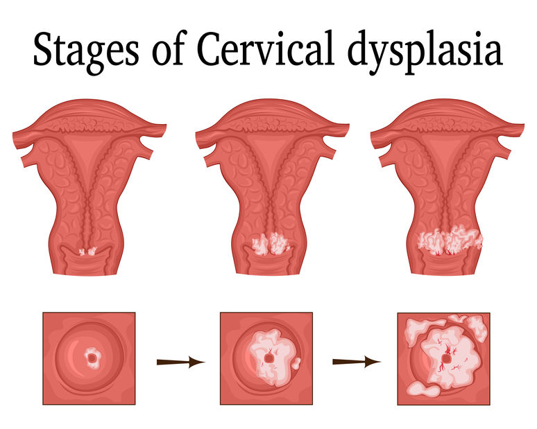 Pap Smears & Gynecology Exams in Rochester NY