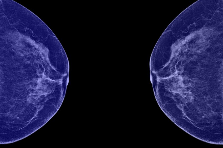Breast Imaging Services in Rochester, NY
